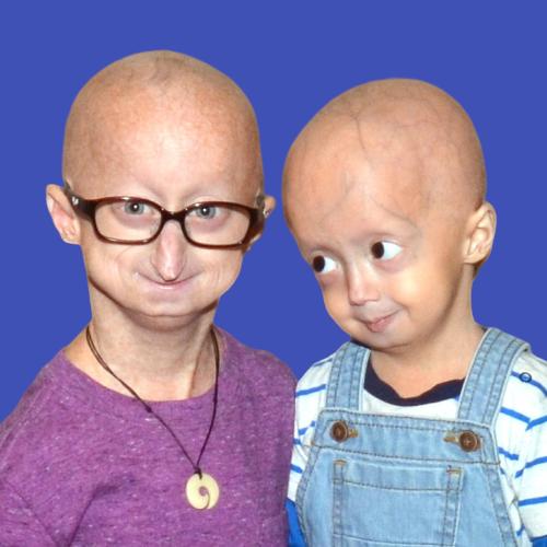 progeria premature aging