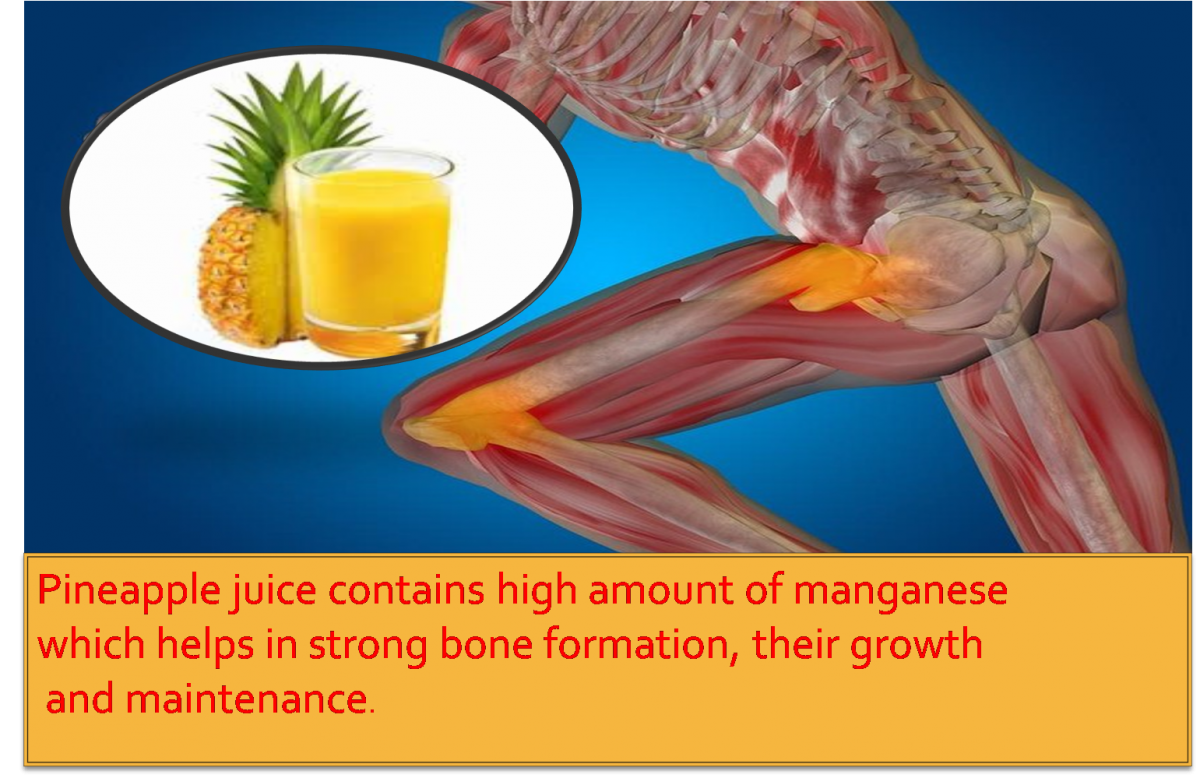 health benefits of pineapple juice on bone